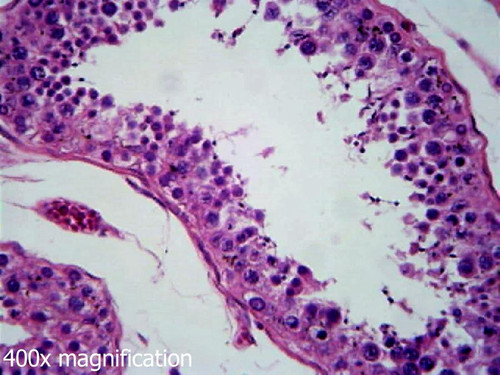 Human testis slide, section