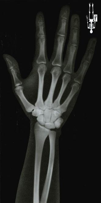 Life Size Human X-Rays Set