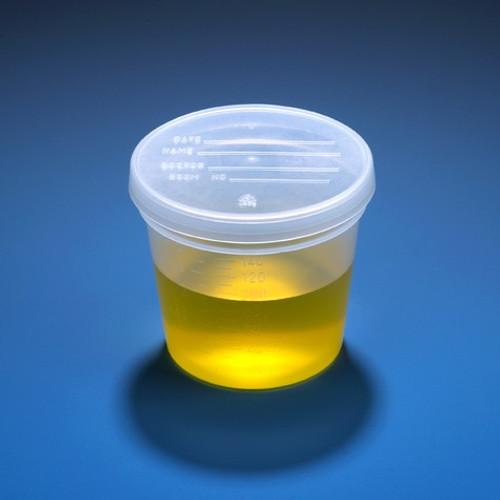 Specimen Container with Lids - 5 oz
