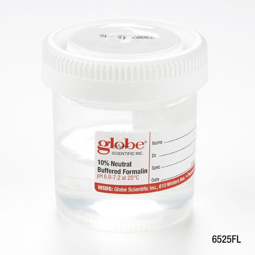 Globe Scientific Formalin Filled Containers, 90mL