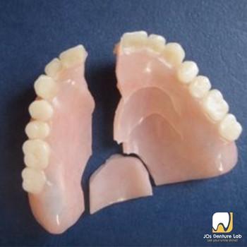 Repair Denture