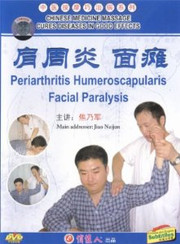 Periarthritis Humeroscapularis Facial Paralysis - (WK44)