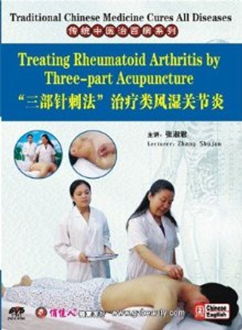 Traditional Chinese Medicine Cures All DiseasesTreating Rheumatoid Arthritis by Three-part Acupuncture - (WK43)