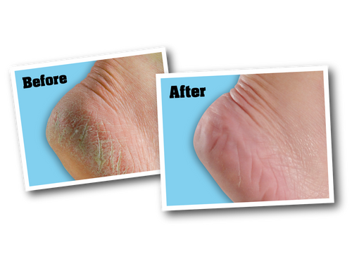 O'Keeffe's K0280001 - Healthy Feet (3 Oz. Tube) - Before & After