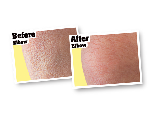O'Keeffe's K0120002 - Skin Repair (12 Oz. Pump) - Before & After