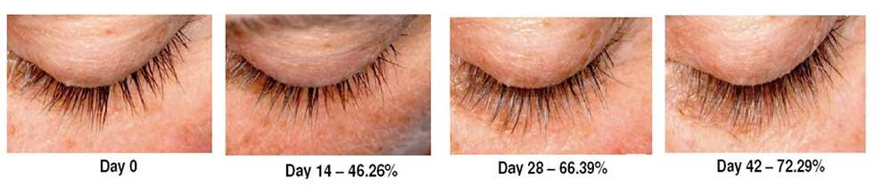 eyelash-growth-1.jpg