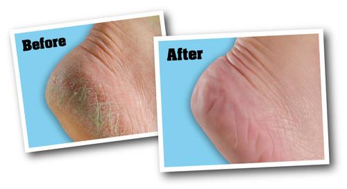 O'Keeffe's For Healthy Feet Foot Cream-3oz -K0280001