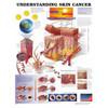 Understanding skin cancer, Chart