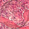 Spleen, section, H&E stain Microscope slide
