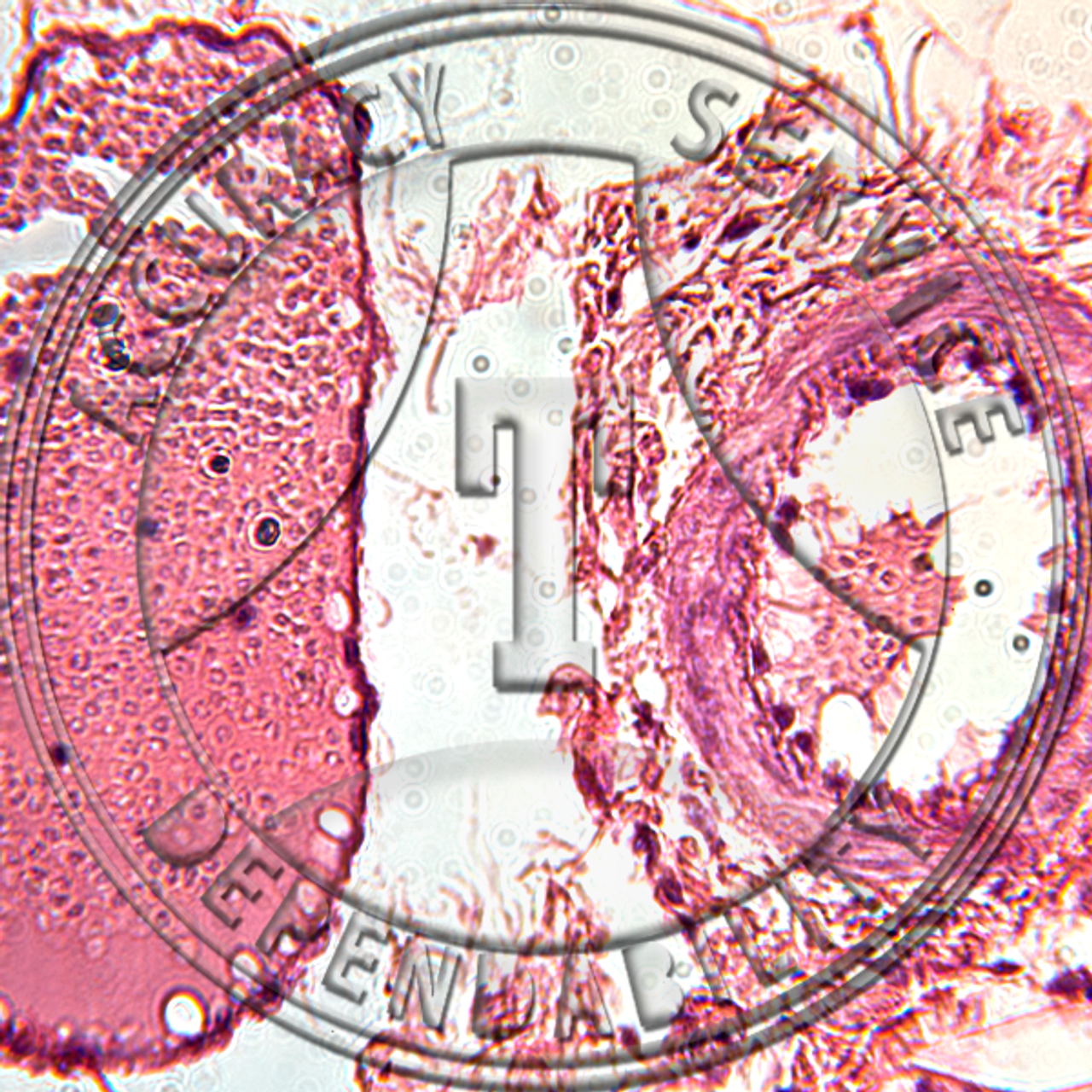 PMS1.20 - Artery, vein and capillaries, TS, H&E stain