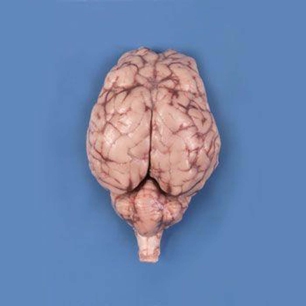 Brain, sheep, preserved, dura mater removed, optic chiasma intact, Perfect Solution
