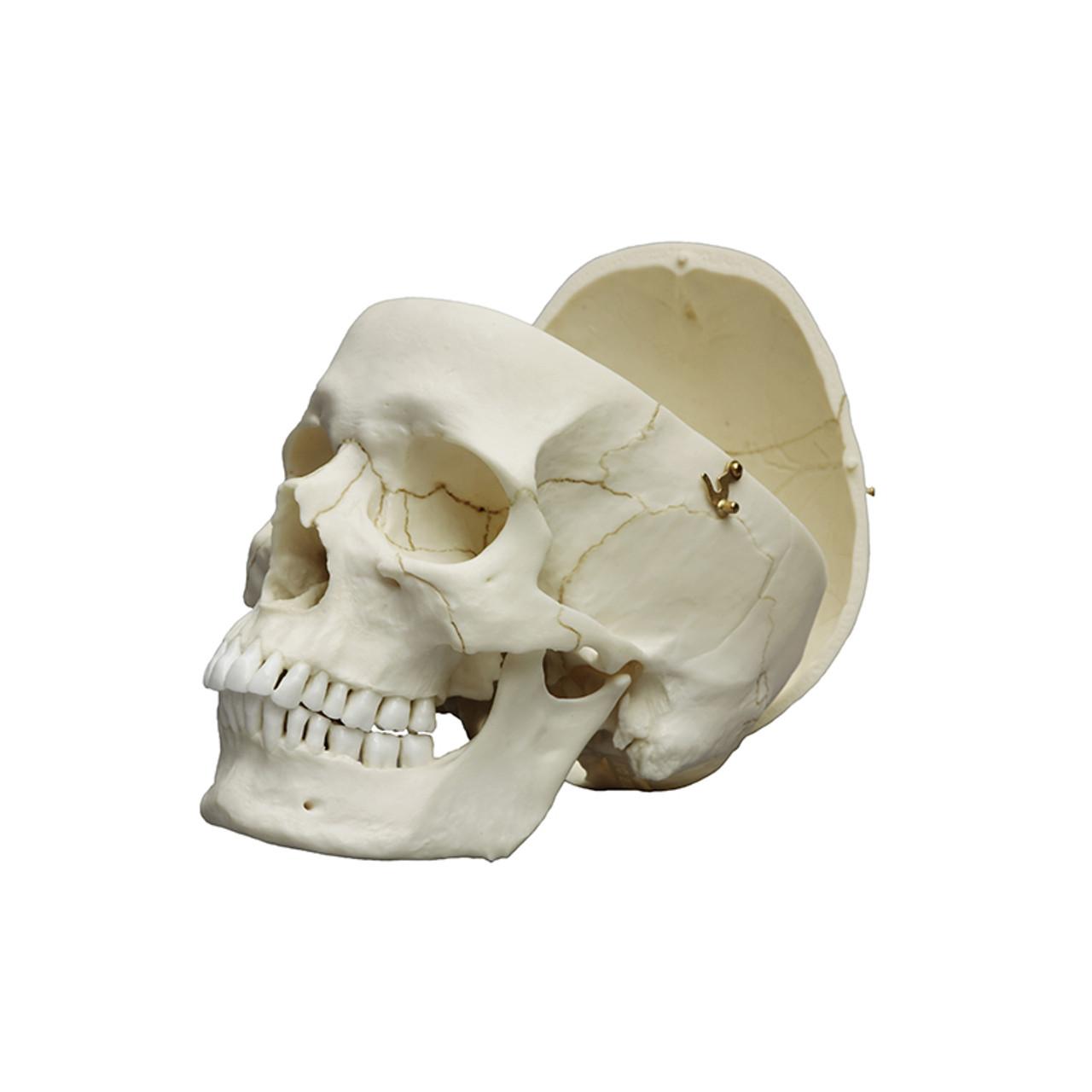 Human male European skull, calvarium cut