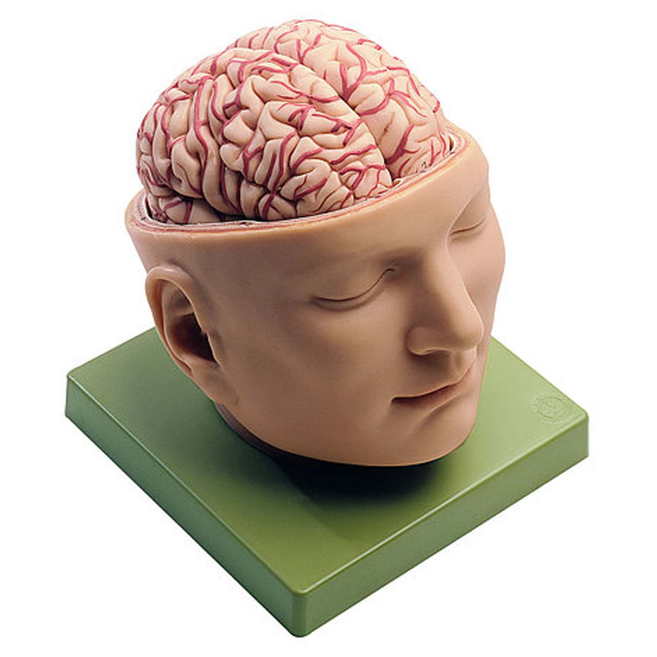 BS5 - Base of the Head