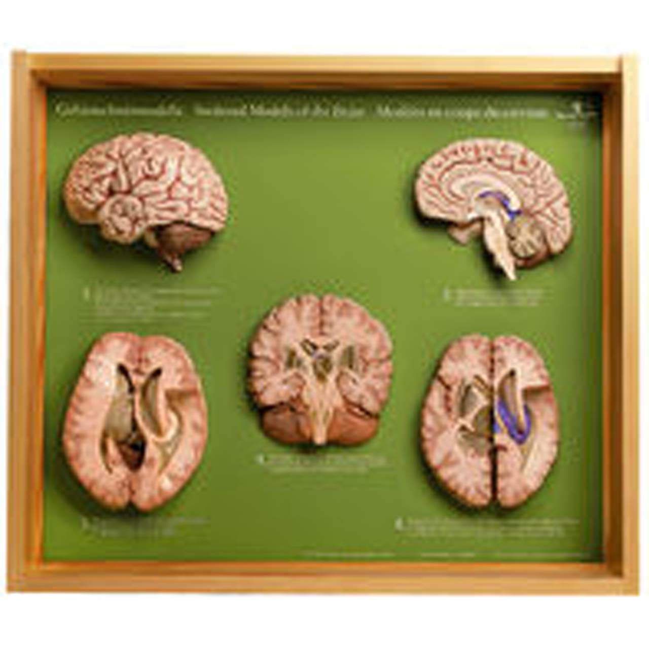 BS45 - 5 Section Models of the Brain