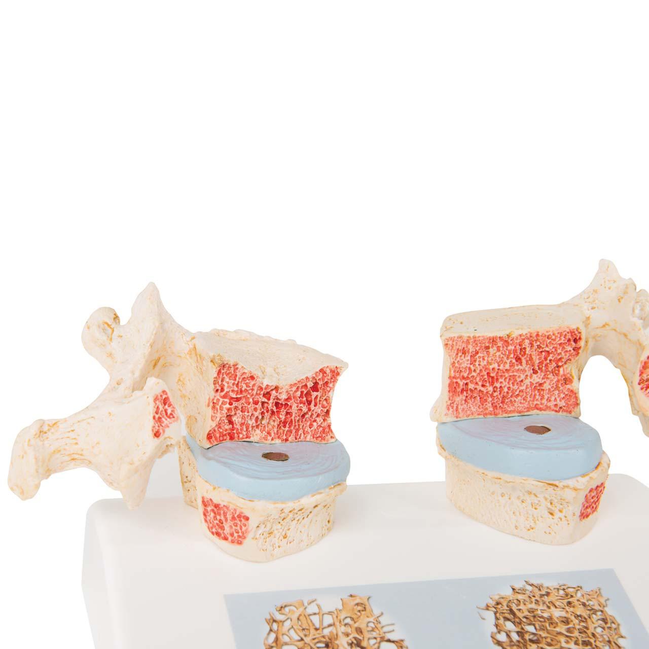 1000182 - Osteoporosis Model