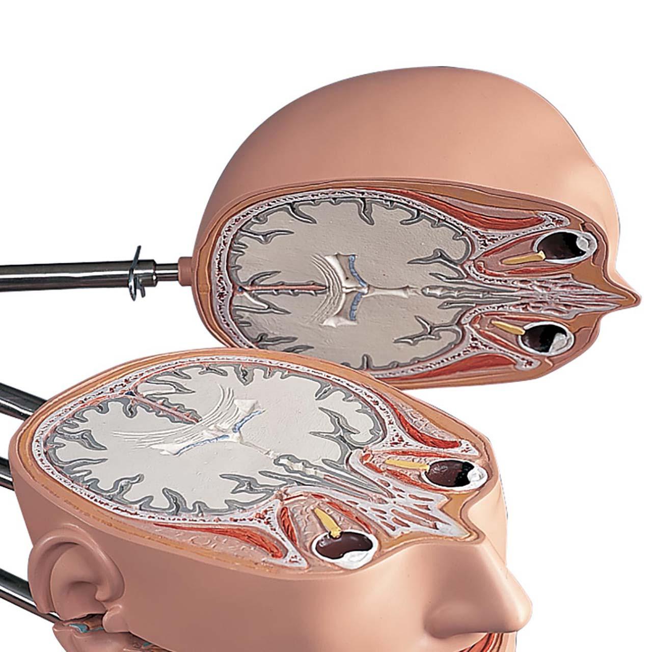 1001237 - MRI Torso, 15 Transverse Sections