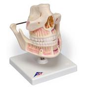 1001247 - Adult Dentures