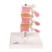 1000153 - Deluxe Osteoporosis Model (3 Vertebrae)
