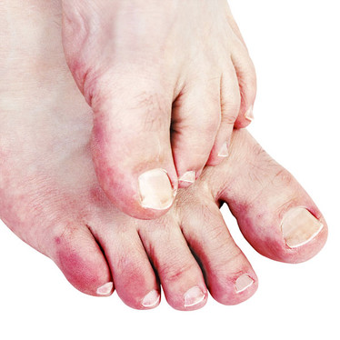 The cold truth about chilblains