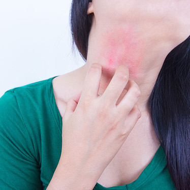 Eczema Causes and Treatment