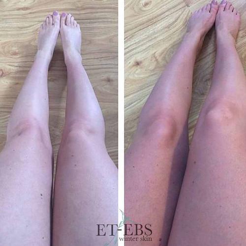 Eco by Sonya Winter Skin viser fargeforskjell før og etter bruk av selvbruningskremen.