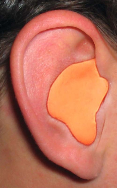 EAR PLUGS THAT FIT Do-It-Yourself Hearing Protection Kit -Orange
