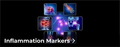 inflammation-383x152-2.jpg