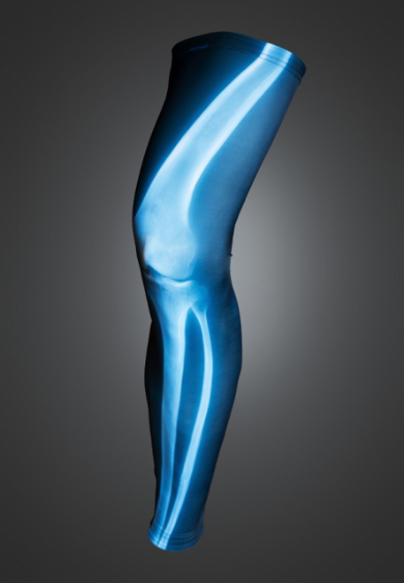 X-ray Legwarmers