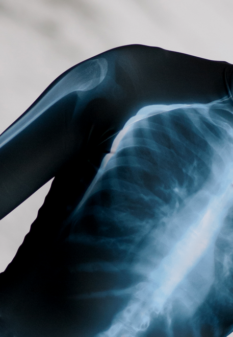X-ray Rashguard Longsleeve