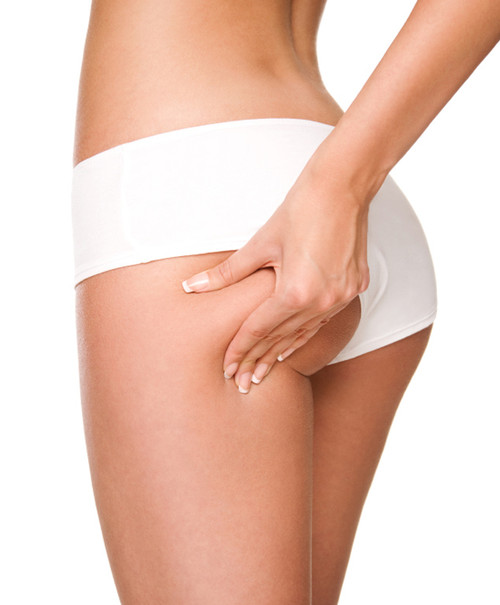 Venus Concept Full Thigh and Buttocks Treatment