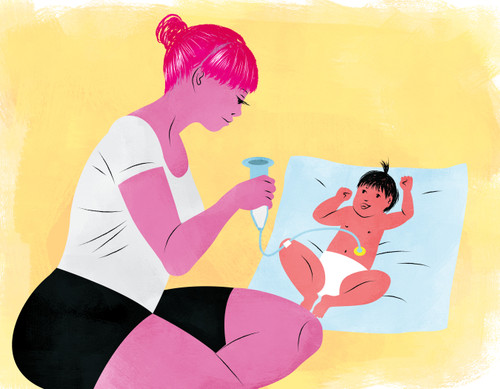 Illustration of a mother feeding her baby with a g-tube