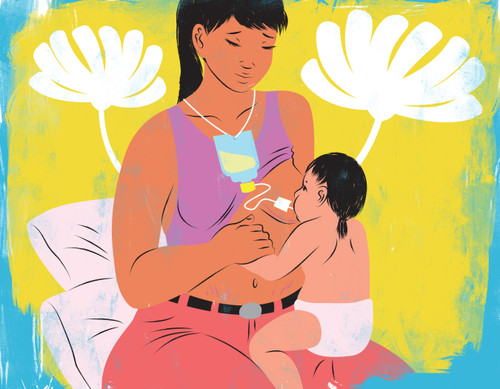 Mother with breast reduction scars breastfeeding baby with supplementer