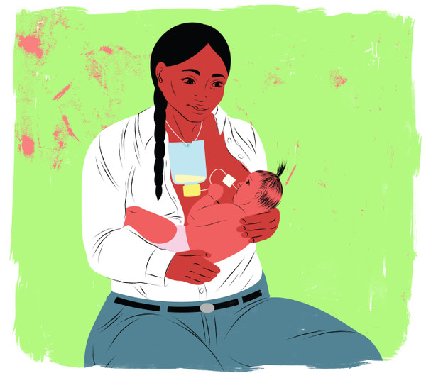 Mother breastfeeding baby with supplemental system