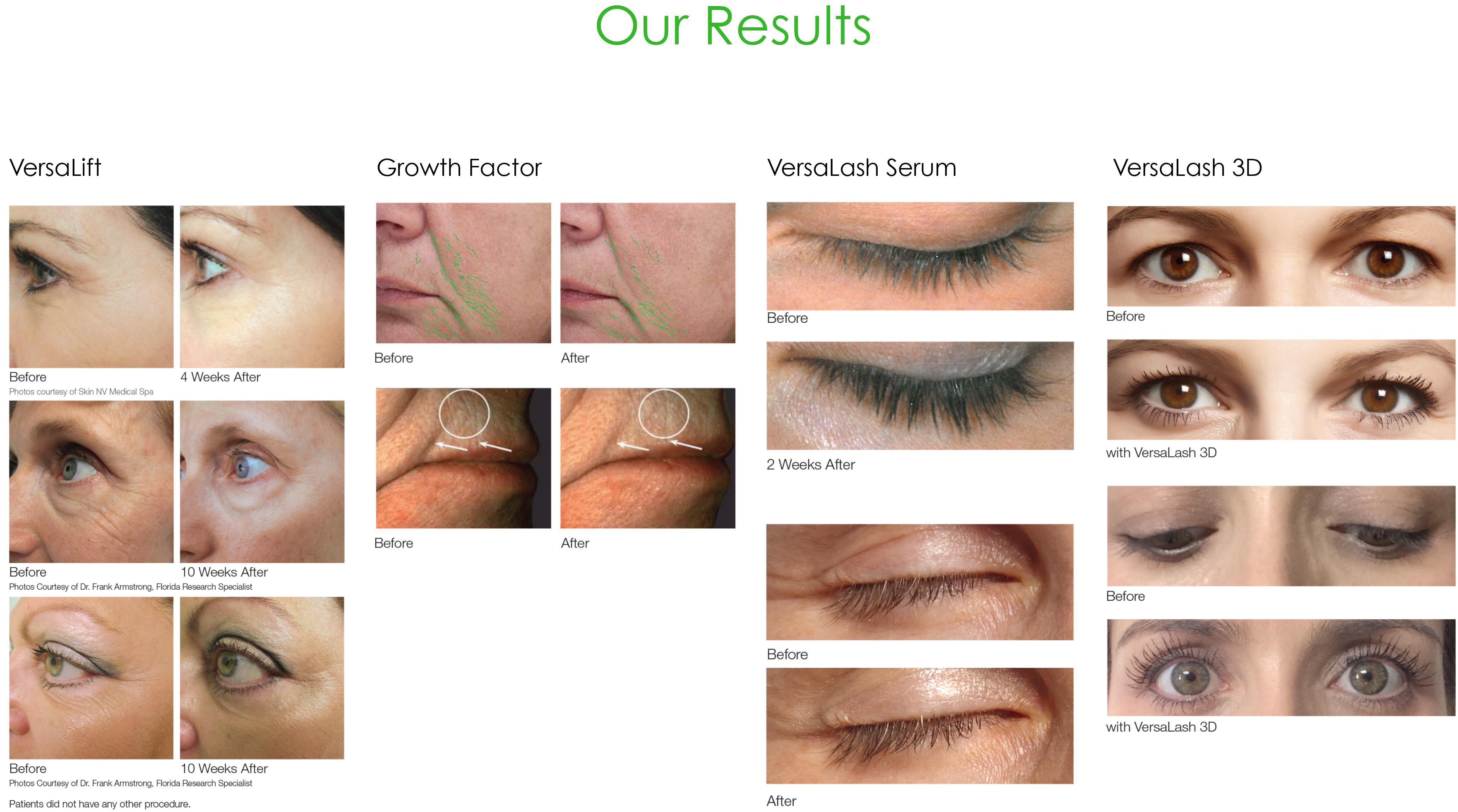 pmd-results.jpg