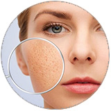 large-pores.jpg