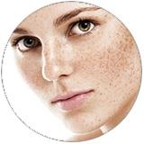 skin-discoloration.jpg