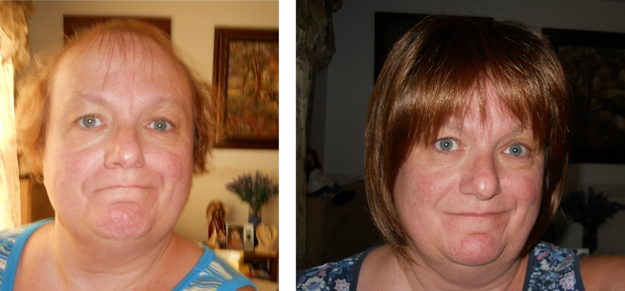 client-sandy-before-after-2-.jpg