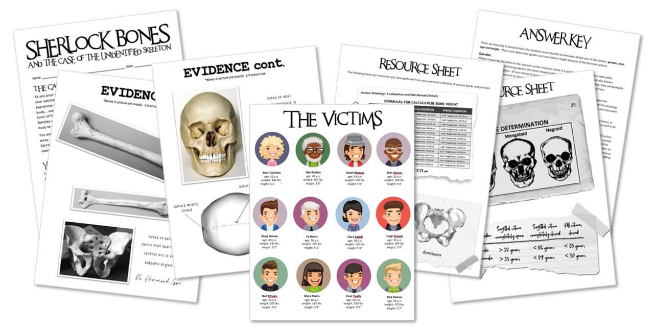 Sherlock Bones! - Activity for the Skeletal System or Halloween!