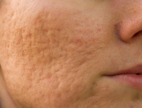 HOW DO I GET RID OF ACNE SCARS?