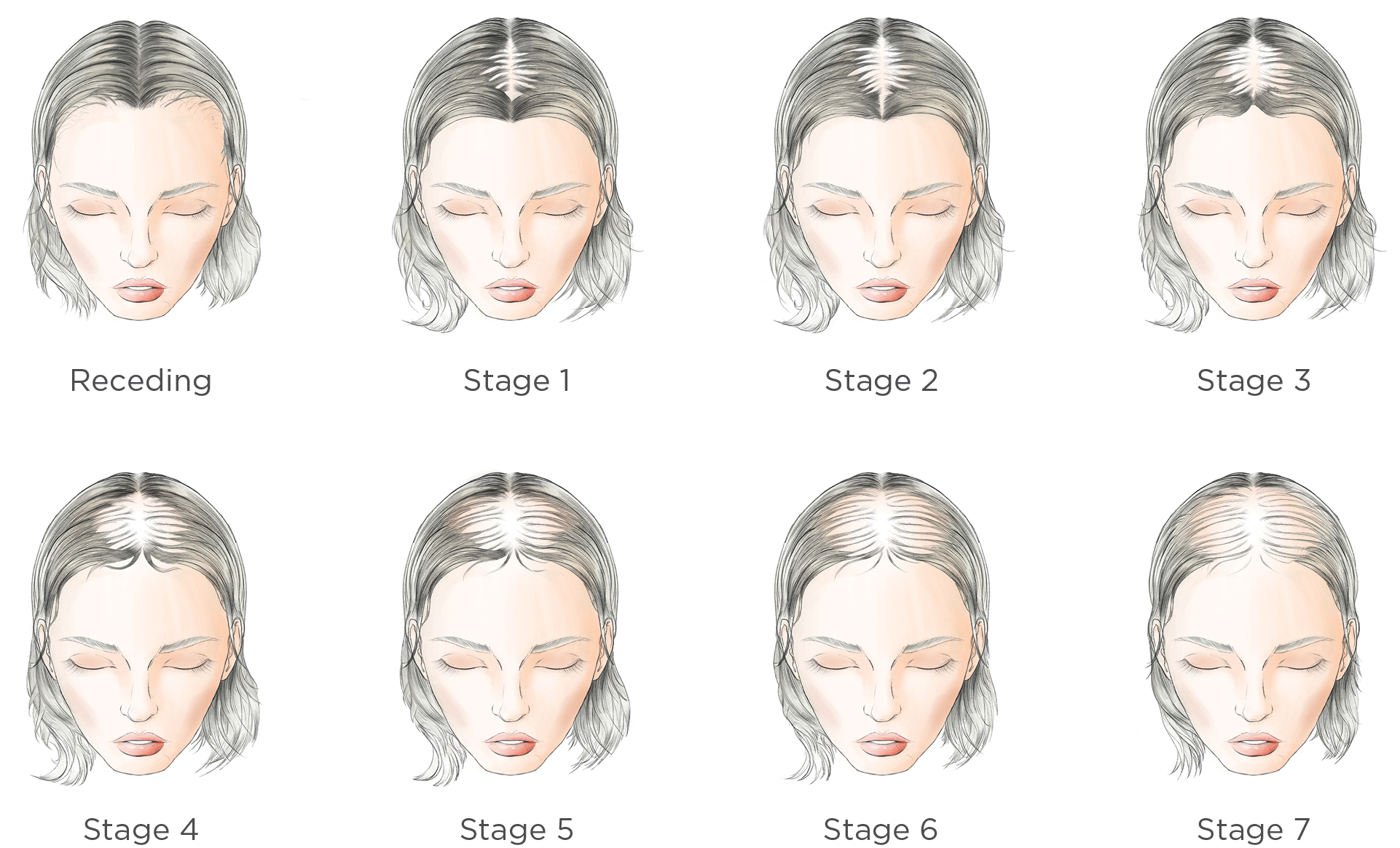 Hair Loss Stages