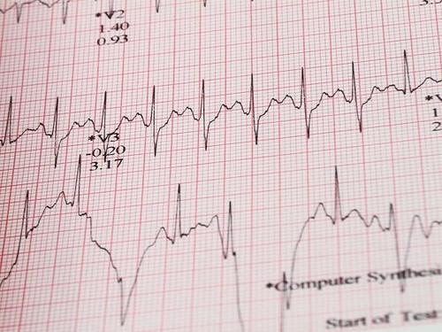 Nihon Kohden Electrocardiograph 2350 Paper