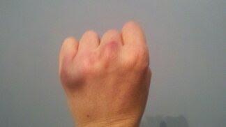 knuckle-injuries-efbvu4ib.jpg