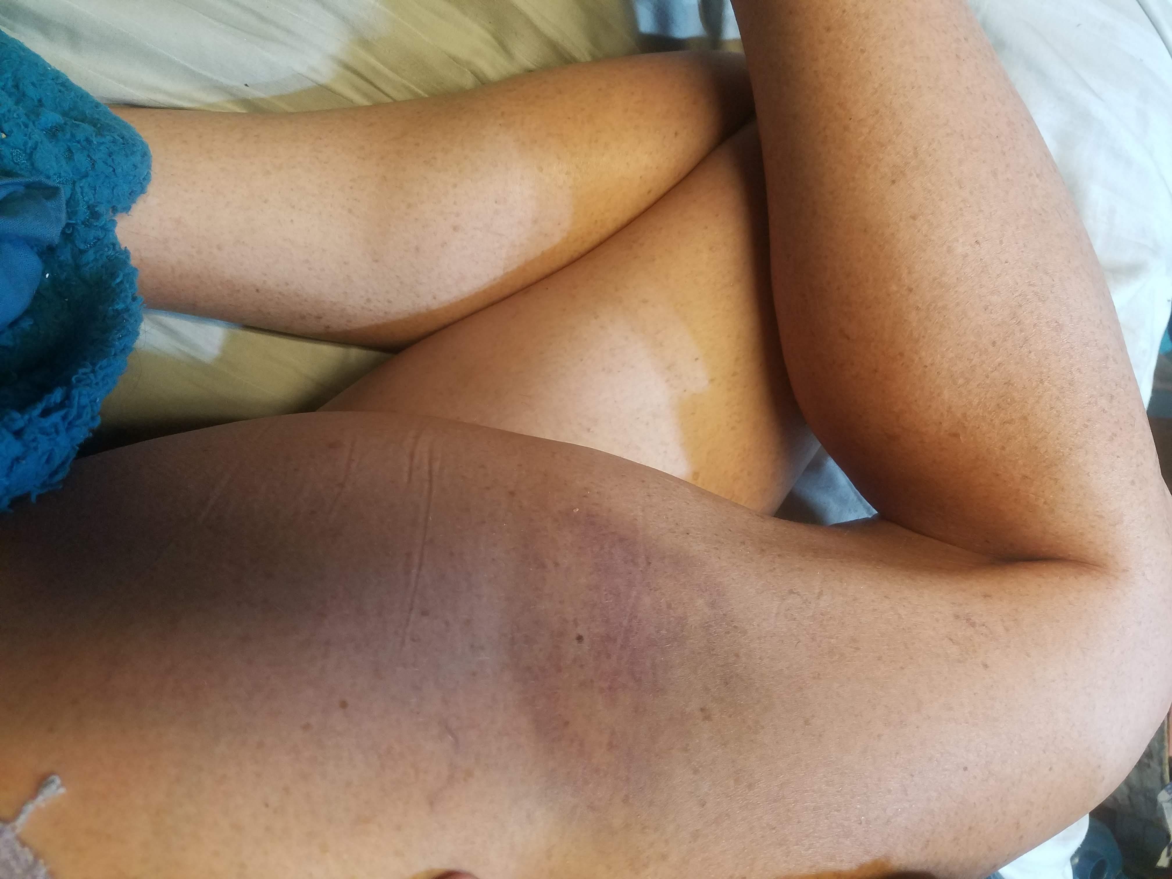 worst-online-seller-injuries-edvh9y78g.jpg