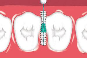 how to use interdental brushes
