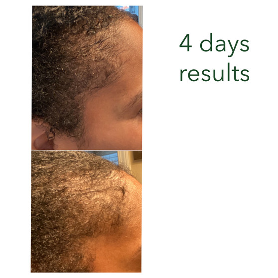 Customer's 4 days results with RejuvenX + Micro-needling Regrowth Booster