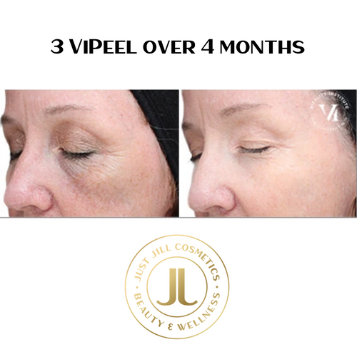 ViPeel medical grade peel.  Available online only during the state mandated social distancing.  You must sign a consent/waiver and go through the online instruction process.