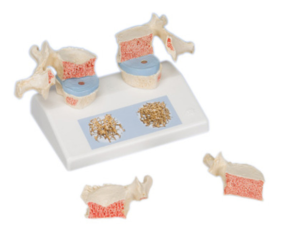 Spine Models