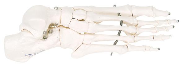 Loose Bone Models