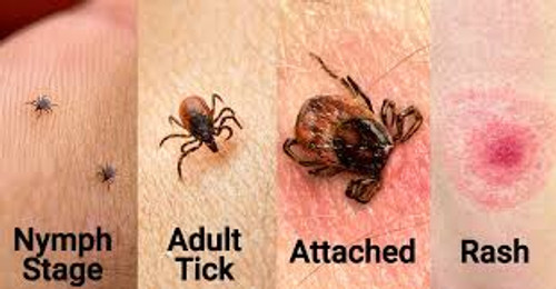 Lyme Disease Protocol- everything you need.