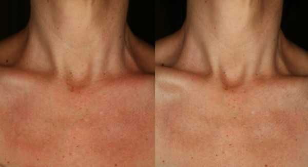 Subject: 48-year-old female Ethnicity: Caucasian Product Used: SENTÉ® Neck Firming Cream (am/pm) Duration: 7 weeks